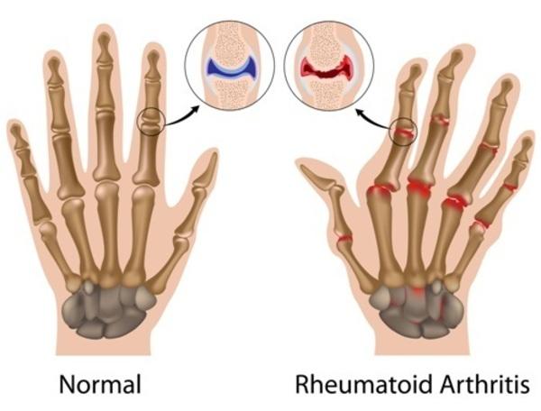 Dating rheumatoid arthritis